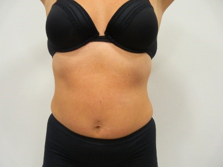 3d lipo after