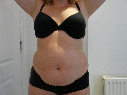 3d lipo before