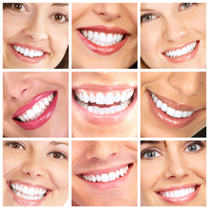 teeth whitening in north wales